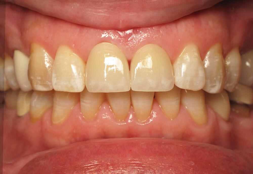 After-Patient 3 Smile make-over
