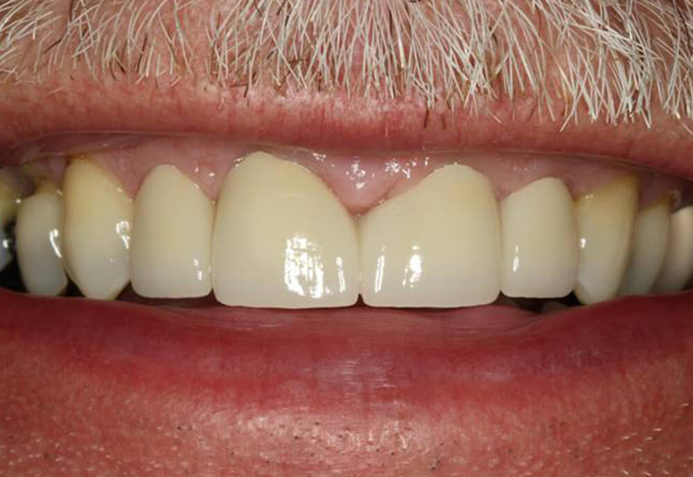 After-Patient 4 Smile make-over