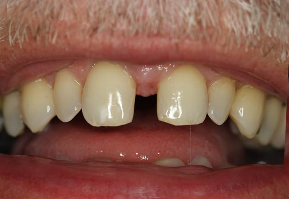 Before-Patient 4 Smile make-over