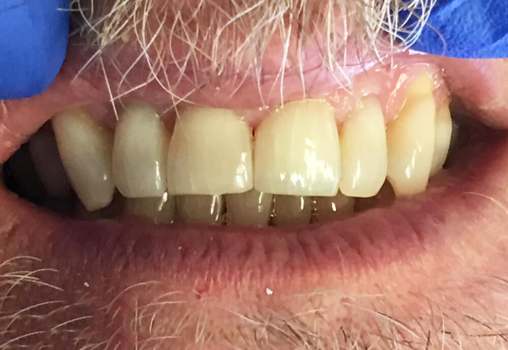 After-Patient 7 Smile make-over