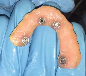 all-on-4 implant