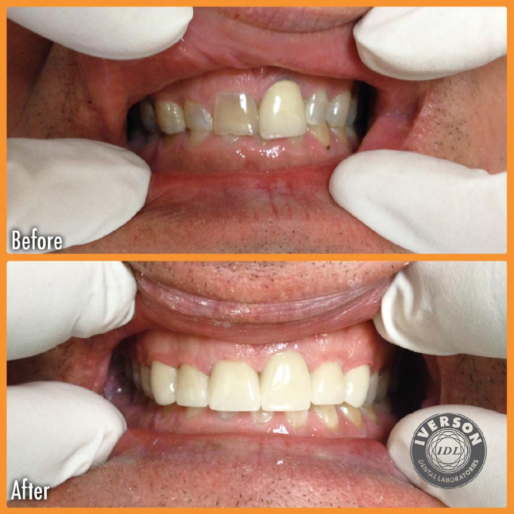 dental bridge creates a beautiful new smile