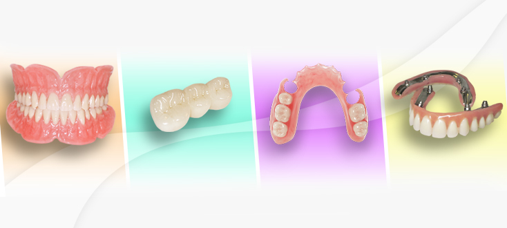 dental lab products, dentures, crown, bridge and partials