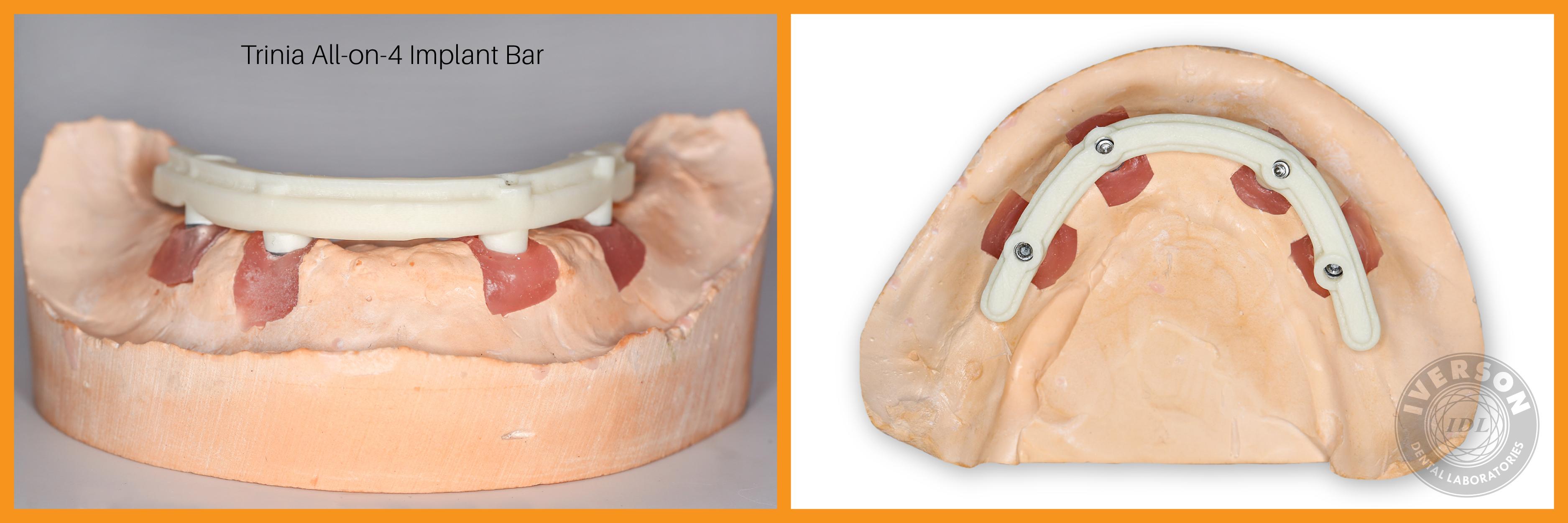 Trinia metal-free implant bar on dental model
