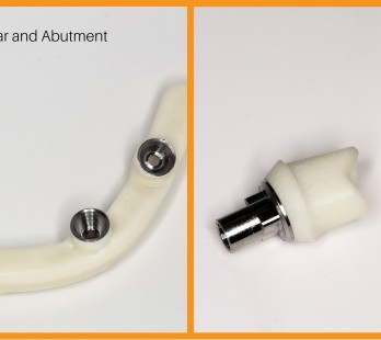 Trinia Metal-free implant bar and abutment