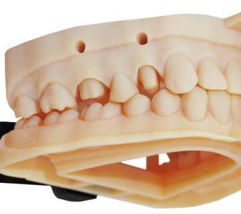 3d printed dental model