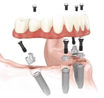 multi abutment dental implant screw retained